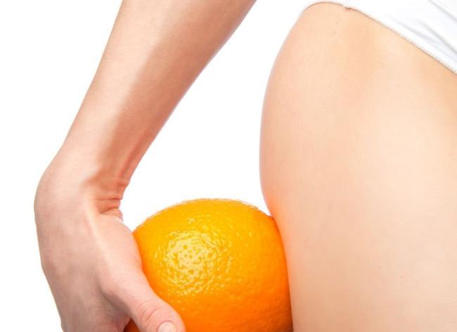 Jak się pozbyć cellulitu? Kosmetyki i zabiegi antycellulitowe oraz zmiana trybu życia