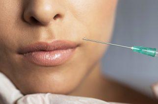 Sposoby na pełne, zmysłowe wargi. Na czym polegają popularne zabiegi estetyczne na usta?